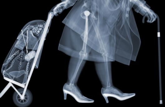 This Guy Exposed Himself To X-Ray Radiation For 20 Years