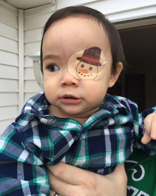 Girl Wears Cute Eyepatch Designed By Dad